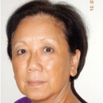 Aileen Carol Lee